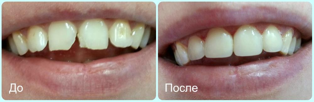 Реставрация передних зубов. Пример 3.